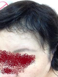 前髪はえぎわ0826(2).jpg