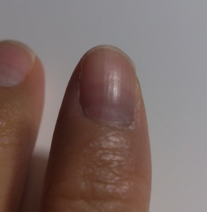 爪だんだん.jpg